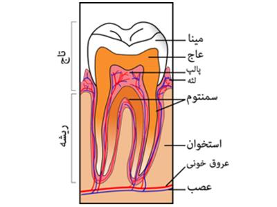 دندانپزشکی آرسته در شیراز عاج دندان عاج دندان چیست 63