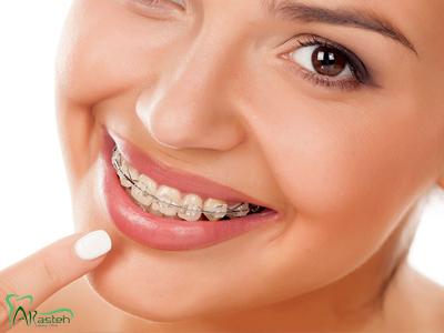دندانپزشکی آرسته در شیراز ارتودنسی دندان در شیراز ارتودنسی دندان 2