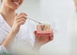 دندانپزشکی آرسته در شیراز [object object] مراقبت های پس از درمان ریشه 3 260x185  مطالب دندانپزشکی 3 260x185