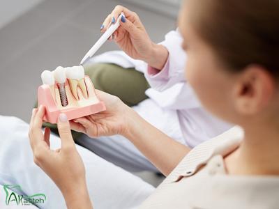 دندانپزشکی آرسته در شیراز ایمپلنت دندان ایمپلنت دندان 4
