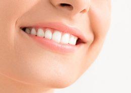 دندانپزشکی آرسته در شیراز [object object] مراقبت های پس از درمان ریشه 77 260x185  مطالب دندانپزشکی 77 260x185