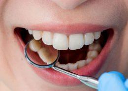 دندانپزشکی آرسته در شیراز [object object] مراقبت های پس از درمان ریشه 78 260x185  مطالب دندانپزشکی 78 260x185