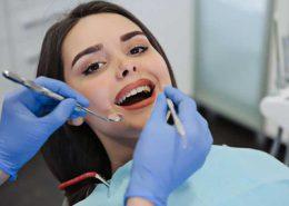دندانپزشکی آرسته در شیراز [object object] مراقبت های پس از درمان ریشه 79 260x185  مطالب دندانپزشکی 79 260x185
