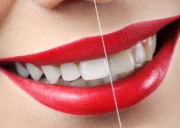 دندانپزشکی آرسته در شیراز [object object] مراقبت های پس از درمان ریشه 86 260x185  مطالب دندانپزشکی 86 260x185