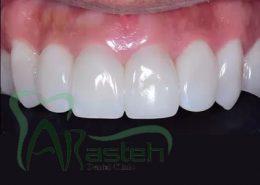 بایوکلیر [object object] مراقبت های پس از درمان ریشه bioclear2 1 260x185  مطالب دندانپزشکی bioclear2 1 260x185