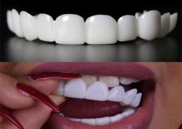 [object object] مراقبت های پس از درمان ریشه snap 260x185  مطالب دندانپزشکی snap 260x185