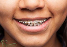 [object object] مراقبت های پس از درمان ریشه orthodontic 260x185  مطالب دندانپزشکی orthodontic 260x185