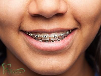 روشهای تشخیص نیاز به درمان ارتودنسی orthodontic