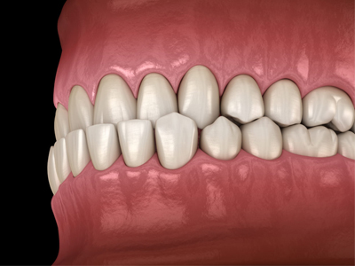 اندربایت چیست؟  افزایش طول تاج دندان Untitled 1 3