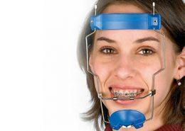 فیس ماسک ارتودنسی چیست [object object] مراقبت های پس از درمان ریشه 400 260x185  مطالب دندانپزشکی 400 260x185