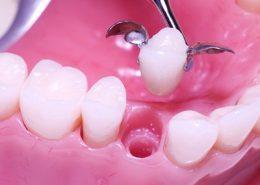 بریج بهتر است یا ایمپلنت [object object] مراقبت های پس از درمان ریشه Untitled 1 1 260x185  مطالب دندانپزشکی Untitled 1 1 260x185